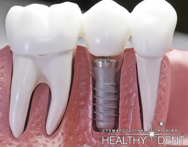 Зубні імпланти  за та проти  9c1740b3edef9