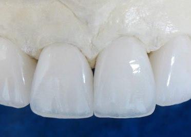 Протез, выполненный из диоксида циркония