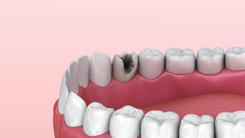 Как проводится лечение каналов зуба
