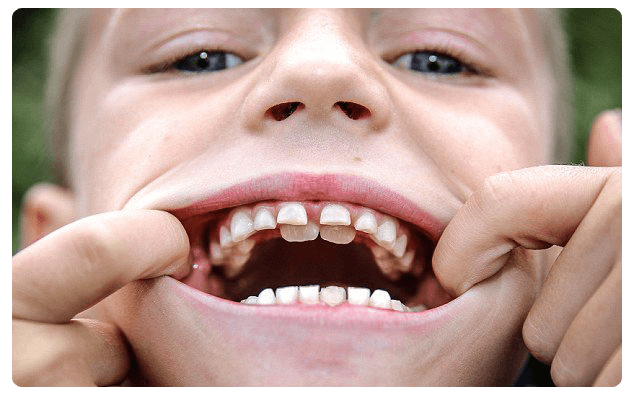 К чему снится когда растут зубы