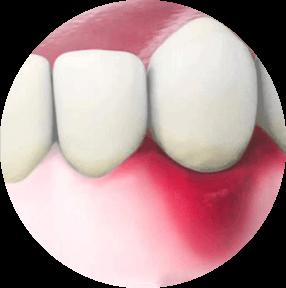 Воспаление десны вокруг зуба лечение