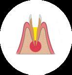Резекция верхушки корня зуба в Хелсидент