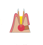 Резекция в стоматологии в Киеве