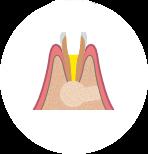 Резекция верхушки корня в профессиональной стоматологии