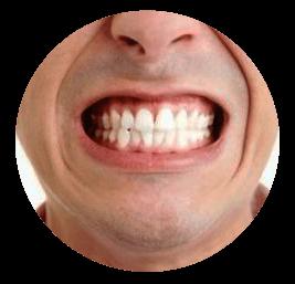 бюгельная улыбка 7