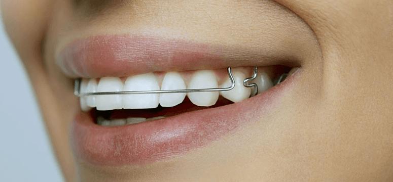 Вони завдяки м якому тиску на зубний ряд або окремі його ділянки сприяють  виправленню прикусу. Через певні проміжки часу пластини підкручують 6ca599c6e922b