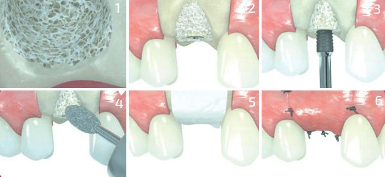 Відновлення об єму кісткової тканини a92d627ca6072