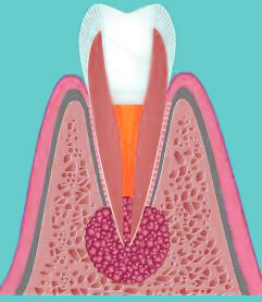 Удаление кисты с зуба лазером минск