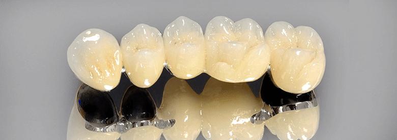 Металокераміку з успіхом використовують для знімного і постійного  протезування мостовидних конструкцій і вкладок. Коли зуб сильно  зруйнований 9d6d4ad84920c