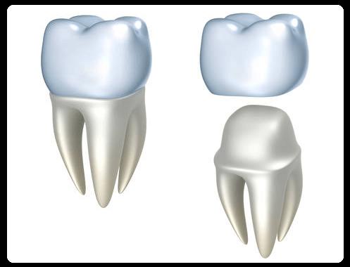 Обточка зуба под металлокерамическую коронку