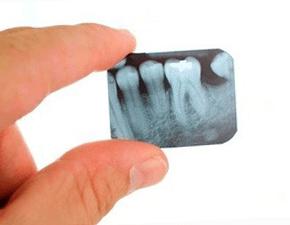 Рентген перед установкой коронок