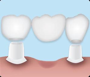 Протезирование зубов мостовидными протезами