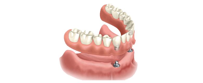Протезування зубів на імплантах  Зубні протези на штифтах в HealthyDent f3acad64267cf