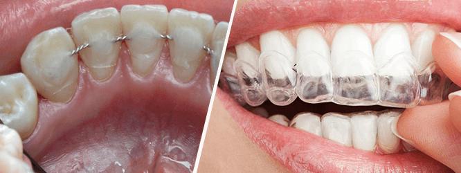 Выравнивающие конструкции для зубов