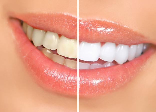 Здоровье. Отбеливание зубов – плюсы и минусы