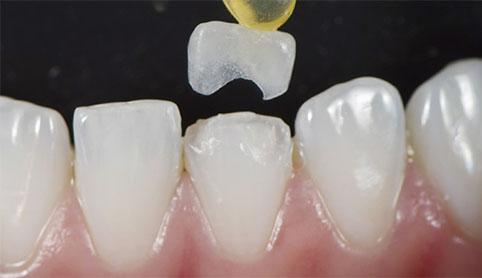 протезування передніх верхніх зубів