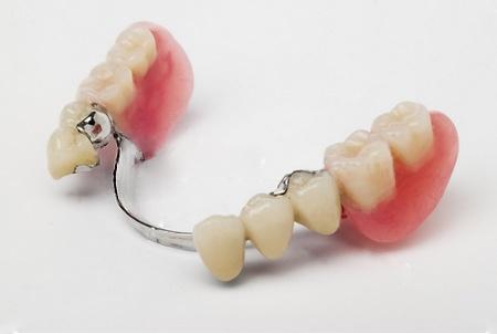 Зубные протезы на присосках