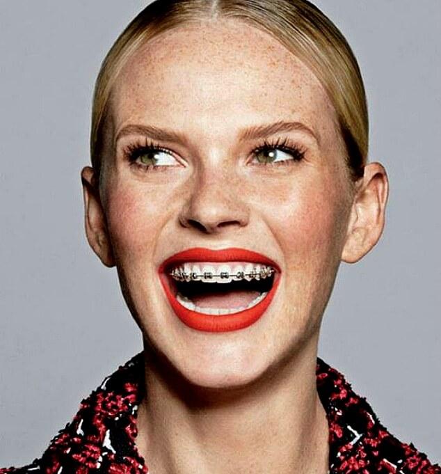Девушка с брекетами из Vogue
