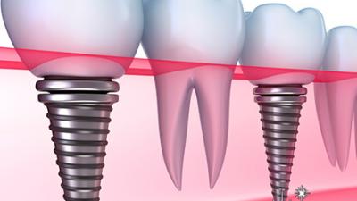 Як проходить імплантація зубів