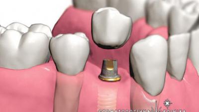 Види імплантації зубів: красиво та ефективно