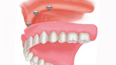 Протезирование зубов на имплантах: съемная конструкция