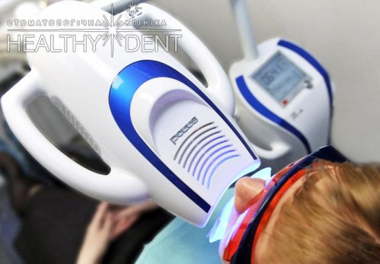 Переваги відбілювання зубів Beyond