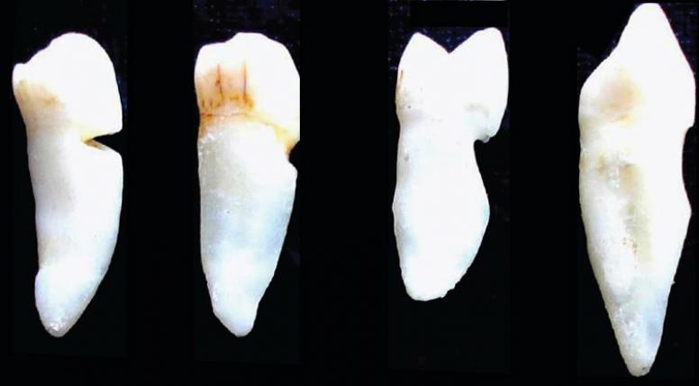 как лечат клиновидный дефект зубов