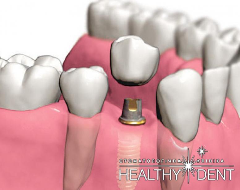 Виды имплантации зубов: красиво и эффективно