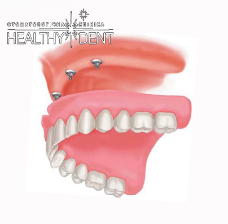 Протезування зубів на імплантатах: варіанти знімних протезів