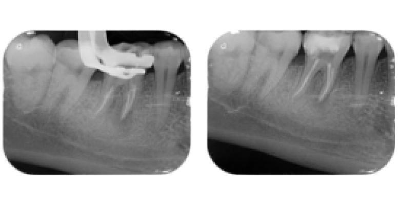 Лечение каналов: стоматолог Healthy Dent Кошарный Владимир Владимирович