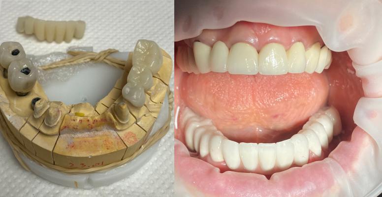 Горбатюк Мирослав Анатольевич - выполненные работы стоматолога-ортопеда: полное протезирование