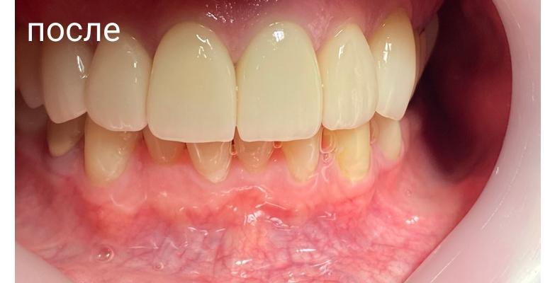 Горбатюк Мирослав Анатольевич - выполненные работы стоматолога-ортопеда: коронка- 9