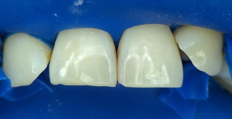 Шульженко Дмитрий: фото работ стоматолога До и После 1