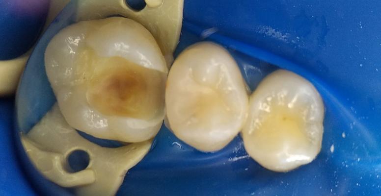 Шульженко Дмитрий: фото работ стоматолога До и После 2