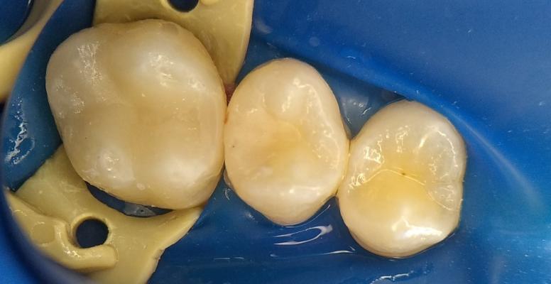 Шульженко Дмитрий: фото работ стоматолога До и После 3