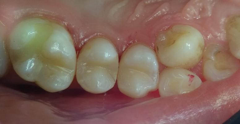 Шульженко Дмитрий: фото работ стоматолога До и После 7