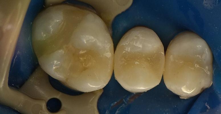 Шульженко Дмитрий: фото работ стоматолога До и После 8