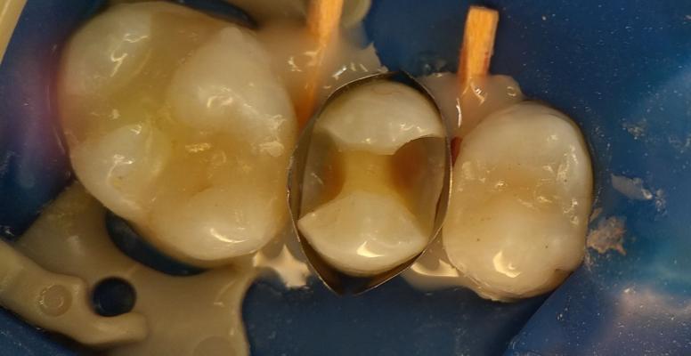 Шульженко Дмитрий: фото работ стоматолога До и После 9