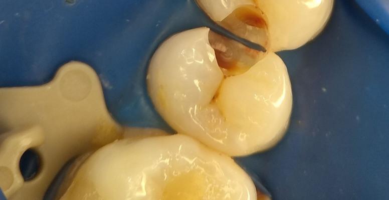 Шульженко Дмитрий: фото работ стоматолога До и После 11
