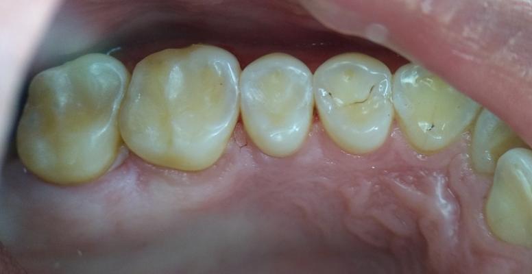 Шульженко Дмитрий: фото работ стоматолога До и После 13