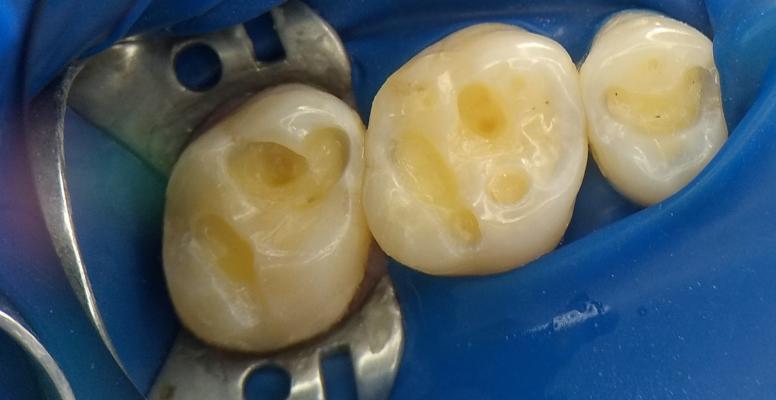 Шульженко Дмитрий: фото работ стоматолога До и После14
