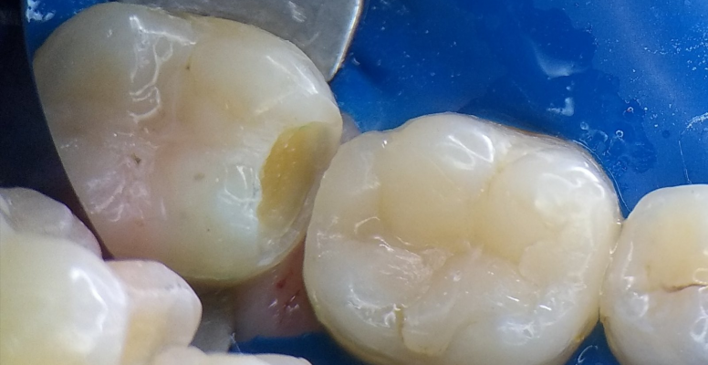 Шульженко Дмитрий: фото работ стоматолога До и После 15