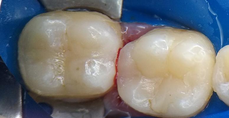 Шульженко Дмитрий: фото работ стоматолога До и После 16