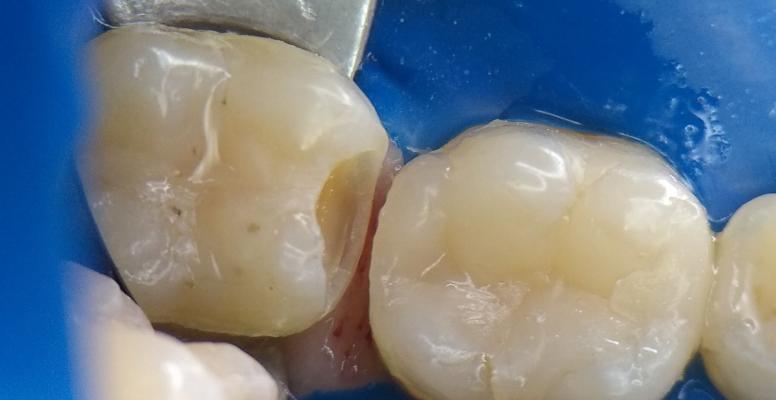 Шульженко Дмитрий: фото работ стоматолога До и После 17