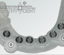 Хирургические шаблоны для имплантации: стоматология в Киеве